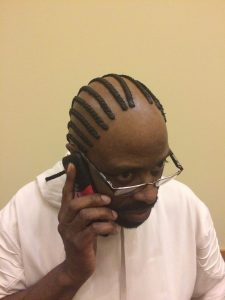 did-this-dude-glue-braids-on-his-scalp